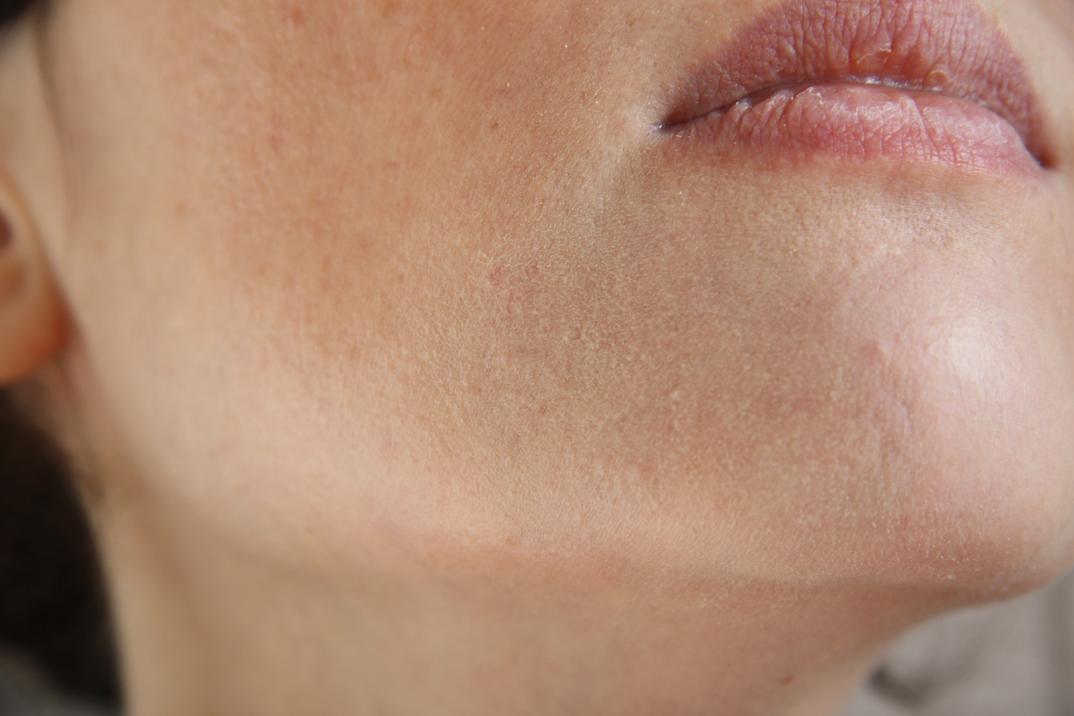 Les herbes pour la personne la peau problématique